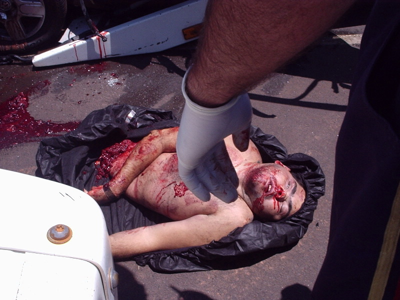 Gory Images Of Teen 53