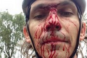Mountain biker attacked and robbed in Blue Hills next to R562